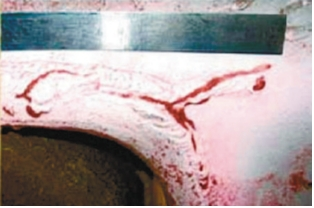 Рис. 1. Трещина в узле крепления букс, выявленная методом цветной дефектоскопии