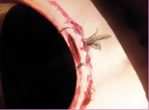 Трещина по линии сплавления сварного шва (наплавленный металл – трубная доска) вварки байпасной трубы в трубную доску, обнаруженная при контроле «холодной» трубной доски